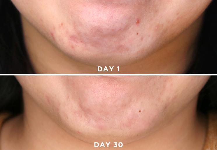 Niacinamide Skin Naturalskins