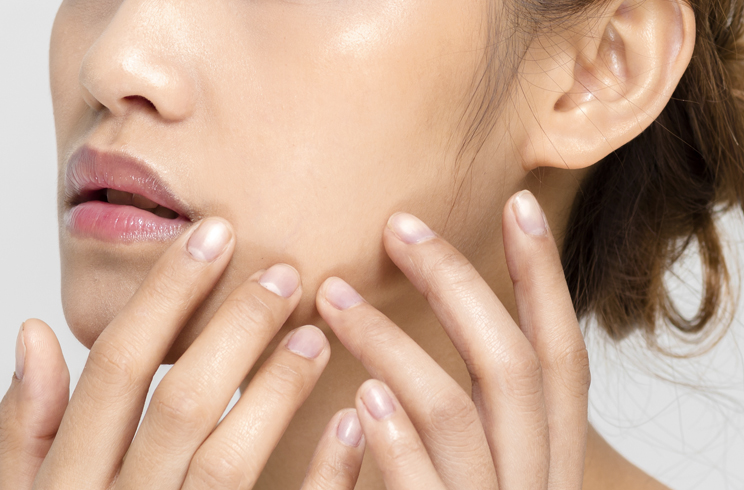 Your Breakouts Might Be Fungal Acne Here S How You Can Tell Bloom