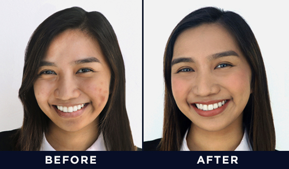 Conquering your pimples is one struggle; the scarring and discoloration they leave is another. The aftermath of a breakout lingers long after the ...