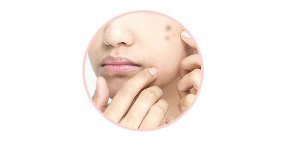 The Editors Answer: How to Heal Acne Scars + More Customer