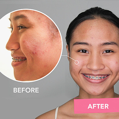 "This Girl Got ""Acne Surgery"" for Her Face and Back"