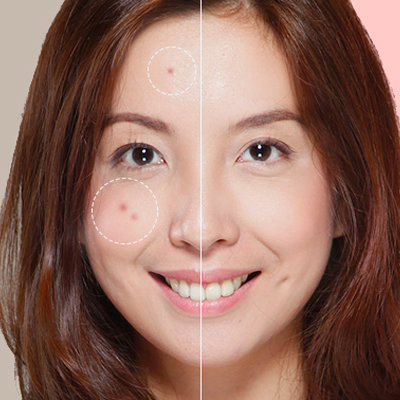 Acne 101: Your Complete Guide