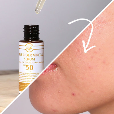 Is ACV The Answer to Your Breakouts? This Local Serum Proves Yes