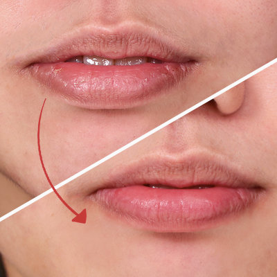 How to Heal Painful, Cracked Lips the Natural Way