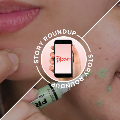 Story Roundup: Everything You Need to Read About Acne Scars