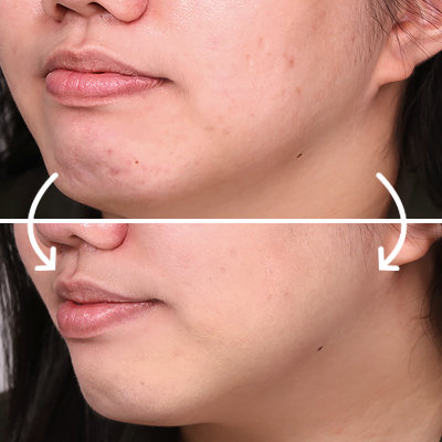 Makeup for Acne: Exactly How to Conceal Dark Spots and Large Pores