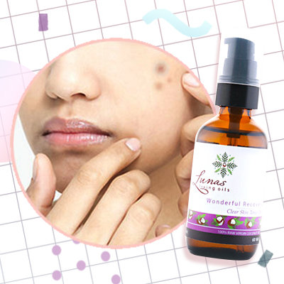 Under P500: 5 Face Oils That Heal Damaged Skin