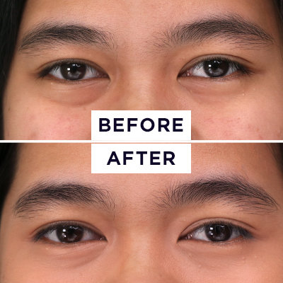 "The Super ""Extra"" Eye Routine to Try If You Never Want Eyebags Again"