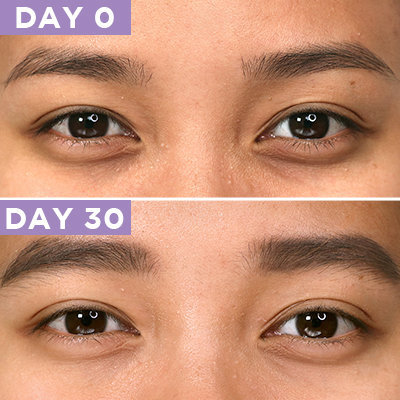 Here's What 30 Days of Eye Cream Will Do For Your Eye Bags