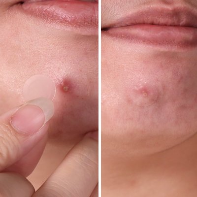These New Pimple Patches Look Practically Invisible on Skin
