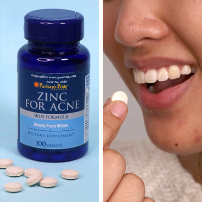 Iffy about Accutane? Maybe Zinc Is The Answer For Your Acne