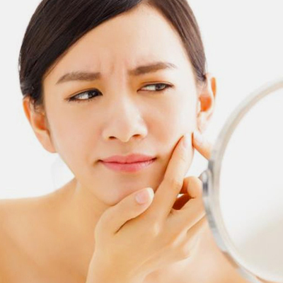7 Ways to Treat a Breakout Without Visiting Your Derma