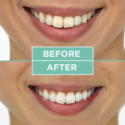 I Used a Teeth-Whitening Mouthwash for Two Weeks