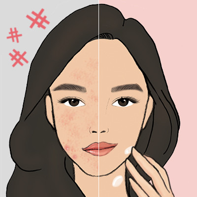 Watch: 5 Mistakes You Make When You Have Sensitive Skin