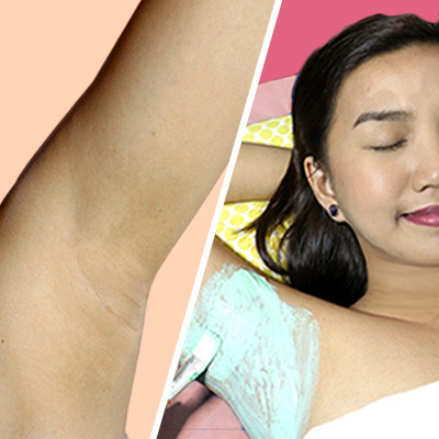 Two Broke Girls Get Their Armpits Brightened for P450