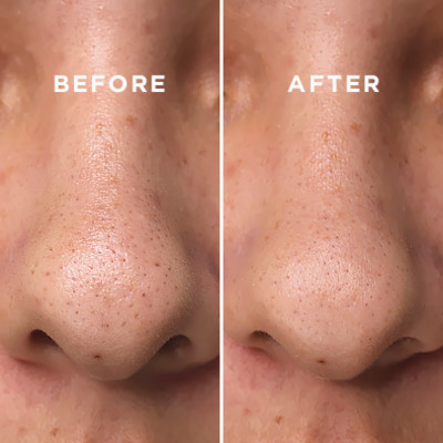 We Tried 4 Blackhead Removers That Actually Work