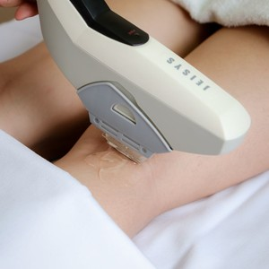 NuLight for Treating Spider Veins on the Legs by Dermclinic