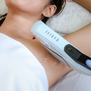 NuLight IPL Hair Removal for Hairless Underarms by Dermclinic