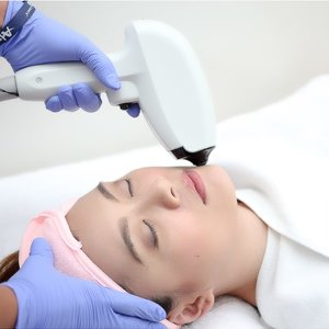 Rejuvenasce Laser Facial & MaxiLift Face Contouring by Aryana International Aesthetic Center