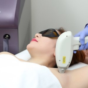 Soprano Diode Laser Hair Removal for the Underarms by Aryana International Aesthetic Center