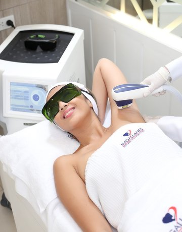 Laser hair removal for the underarms copy