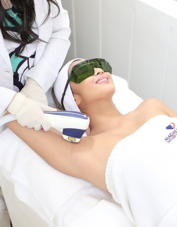 Laser hair removal for the underarms