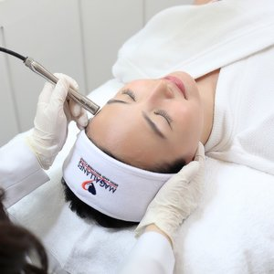 Lightening Radiant Peel with Diamond Peel for the Face by Magallanes Skin and Wellness Clinic