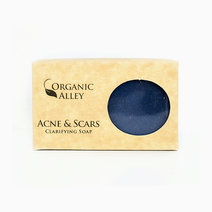 Acne & Scars Be Gone Soap by Organic Alley in