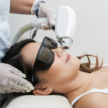 Diode Laser (Upper Lip) by Aryana Aesthetic Center