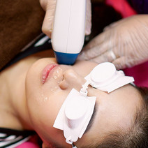 Upper Lip IPL Hair Removal by STRIP: Ministry of Waxing