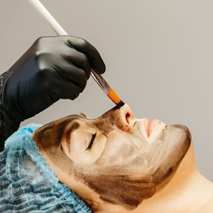Carbon Laser Peel for Clear Pores by DermHQ
