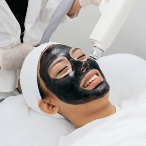 Carbon Blackdoll Laser for Smooth, Bright Skin by Skin Buffet Aesthetic Clinic