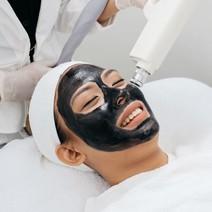 Carbon blackdoll laser treatment