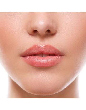 Upper lip ipl