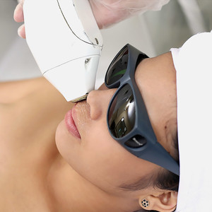 Diode Laser for Upper Lip Hair Elimination by Skin & Body by MEDICard