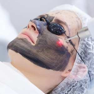 Carbon Laser to Calm Troubled Skin by Excelsior